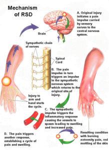 Complex Regional Pain Syndrome (CRPS) or Reflex Sympathetic Dystrophy (RSD)