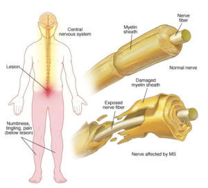 a description of the multiple sclerosis as a chronic inflammatory demyelinating disease that affects A look at chronic inflammatory demyelinating polyneuropathy (cidp), a condition that leads to nerve damage  chronic inflammatory demyelinating polyneuropathy is a neurological disease that.