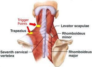 Myofacial Muscle Pain