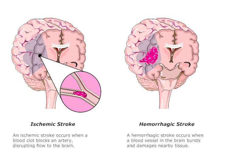 Stroke and Cerebrovascular Disorders